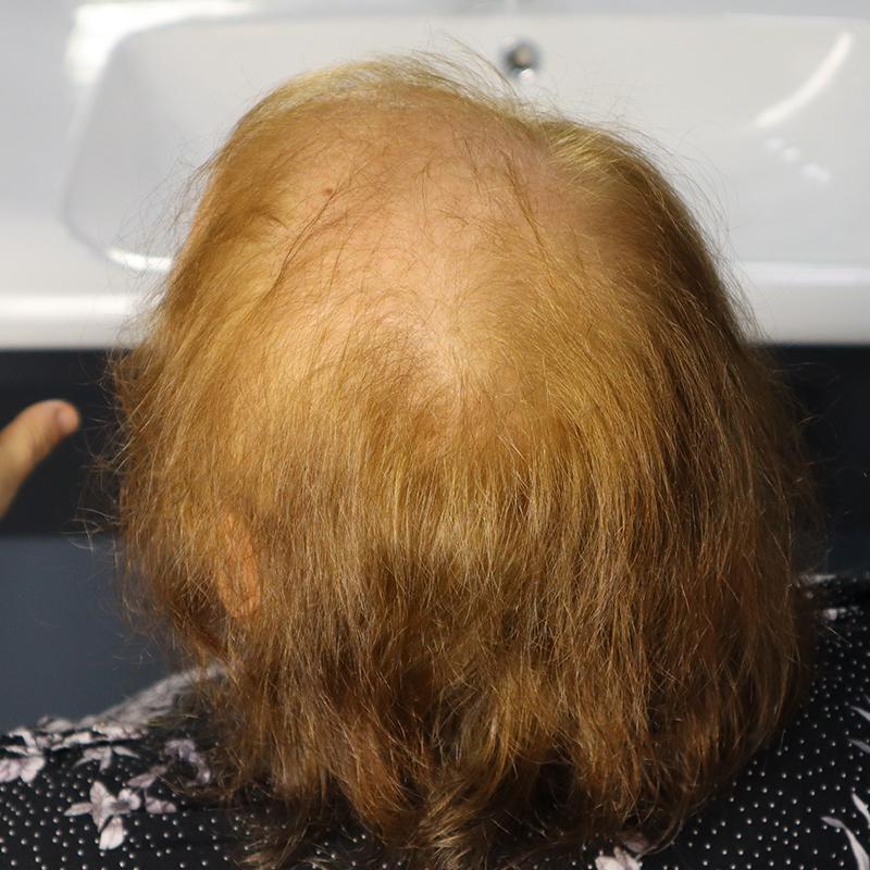 weaving system protez saç