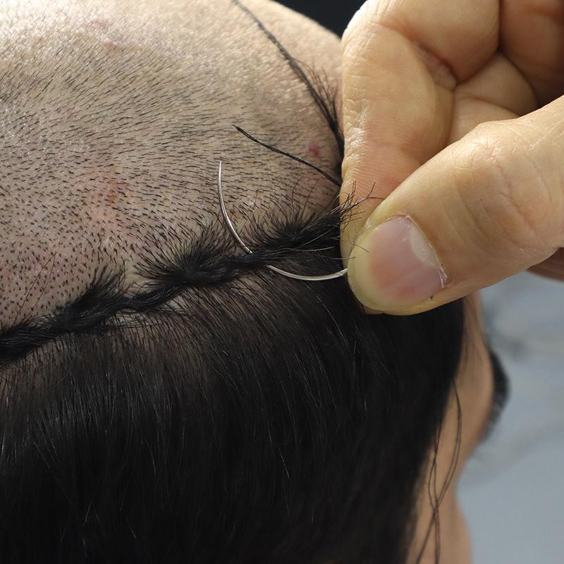 erkek örgü protez saç