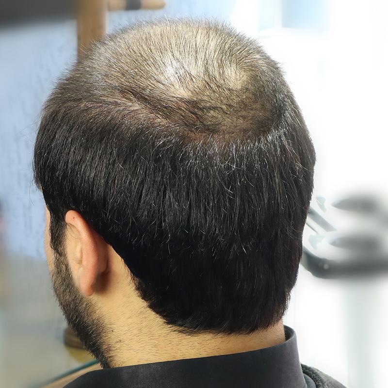 bantsız protez saç