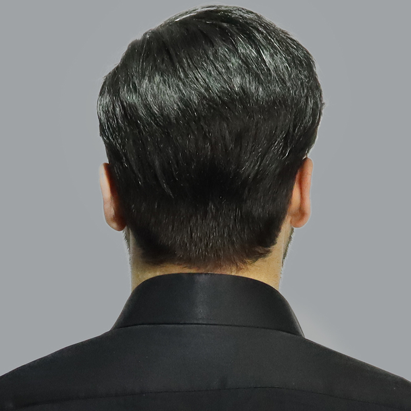 örme usulü saç protezi