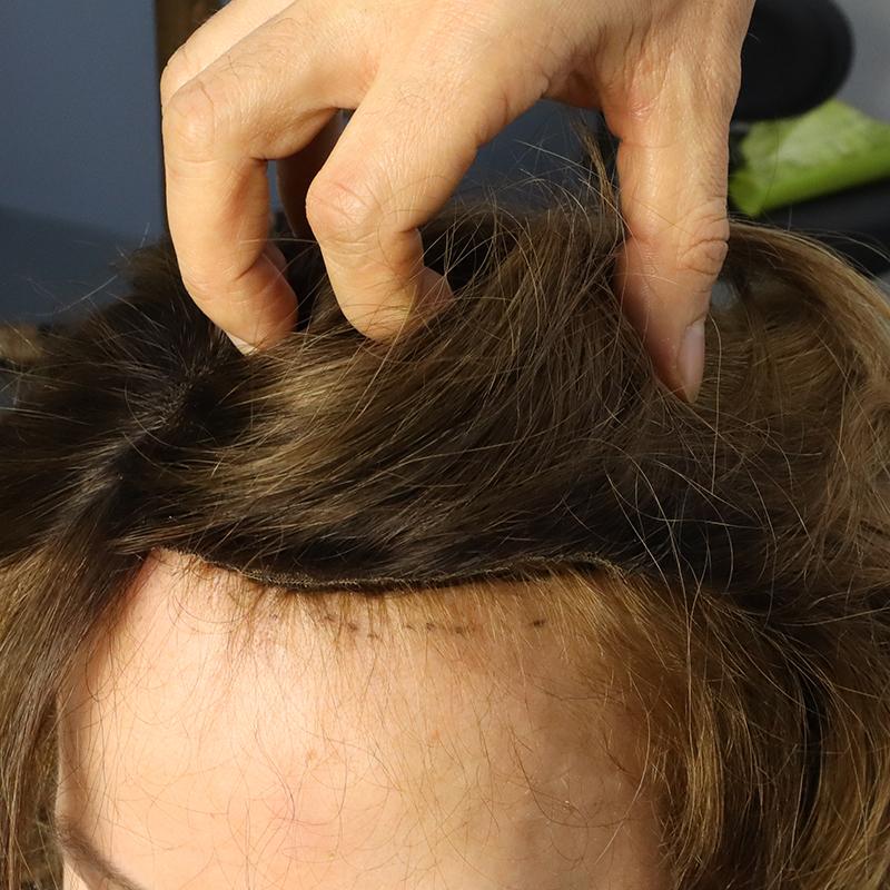 örgü sistemi ile protez saç