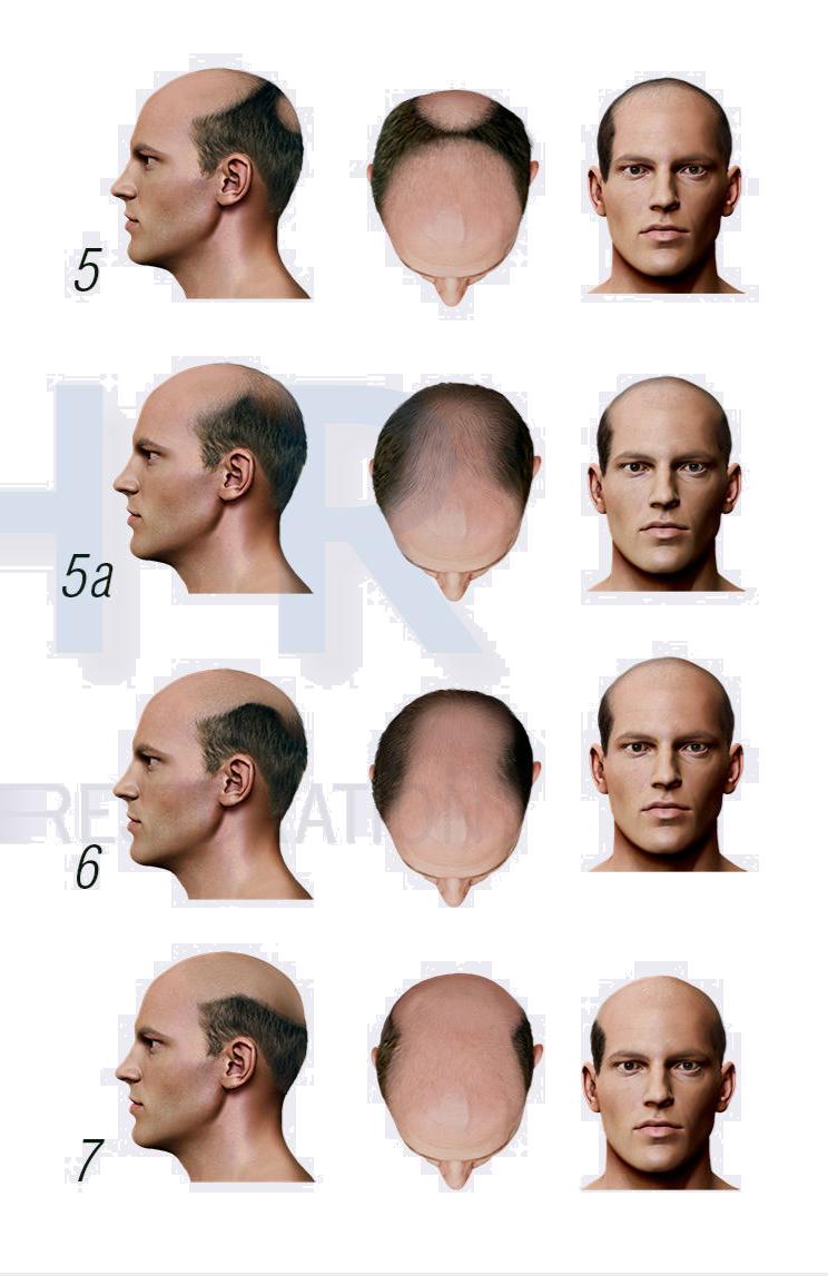 dökülmelere göre erkek protez saç kullanma çeşitleri