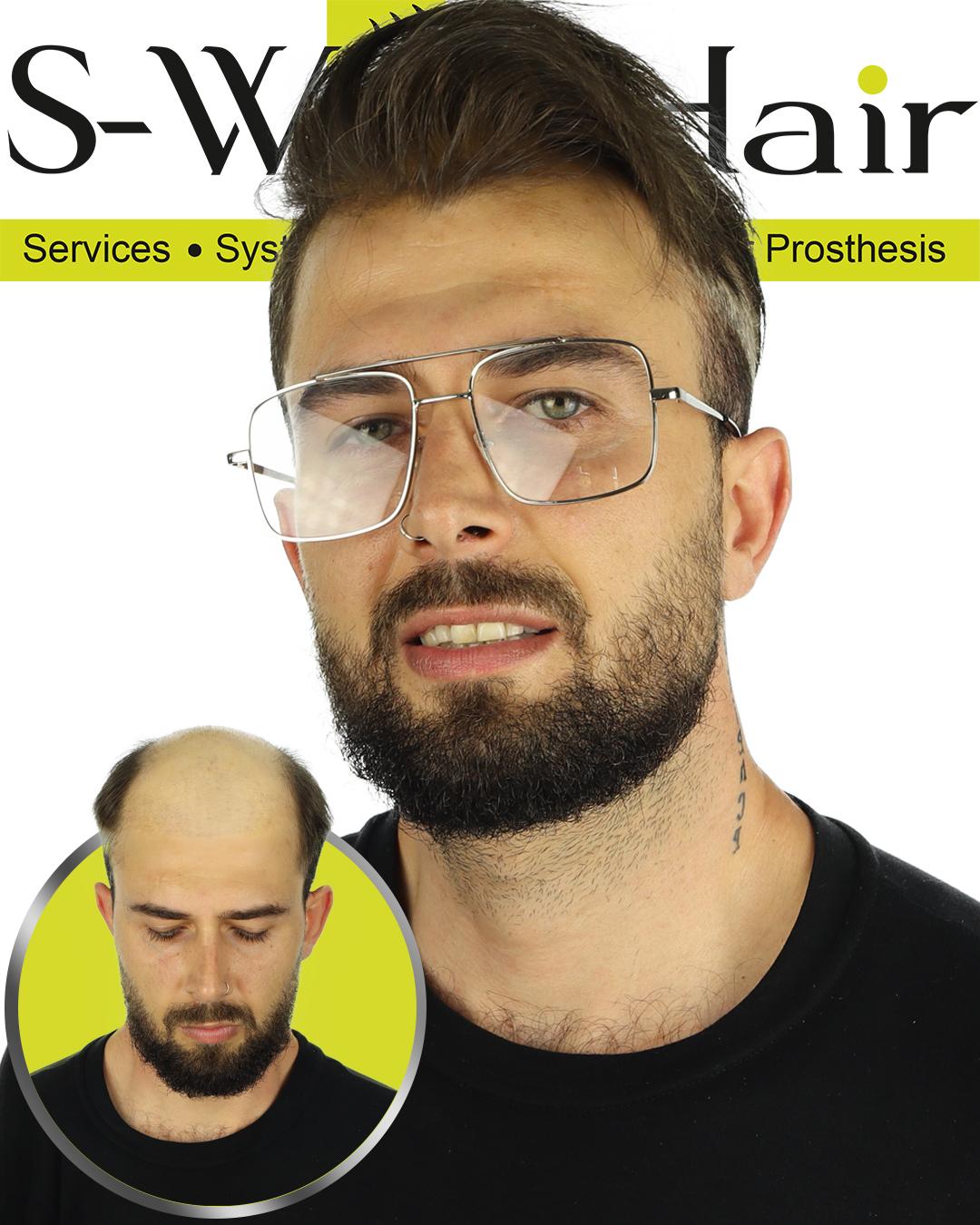 protez saç fotoğrafları