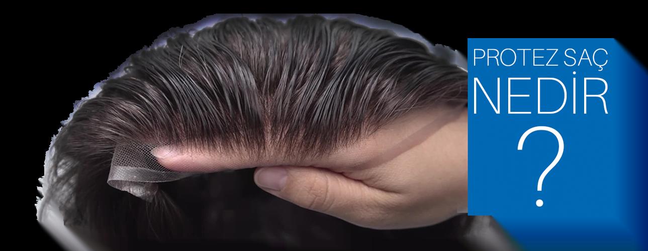 Erkekler de protez saç