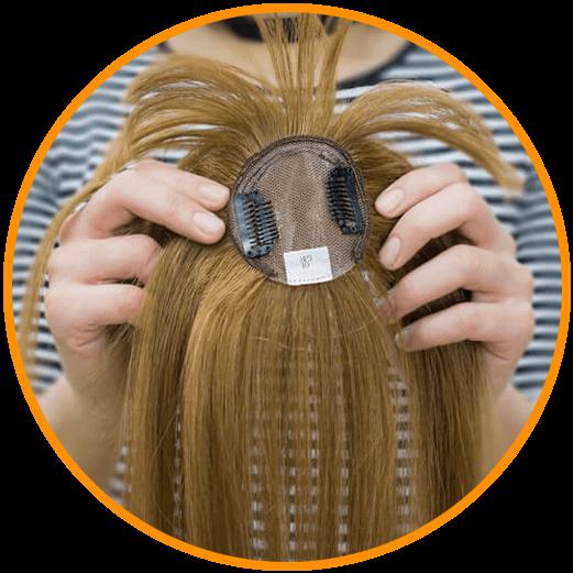 saç tepeliği
